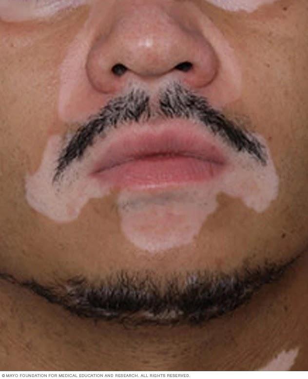 Vitiligo hastalığı nedir nasıl tedavi edilir 1