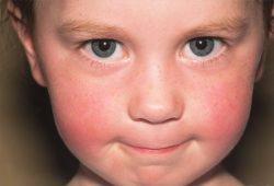 yüzümüz-neden-kızarır