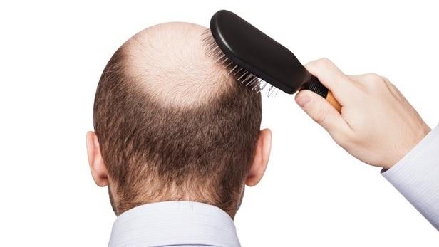 Saç Dökülmesini Engelleme Yolları